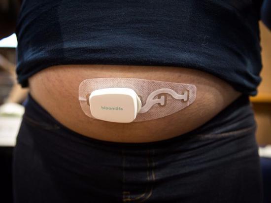 Bloomlife健康追踪设备可以让准妈妈们分清宫缩与潜在并发症之间的区别。遗憾的是,它并未获FDA批准,在租用它的第一个月价格是150美元,第二个月减少至100美元,第三个月只有50美元了。