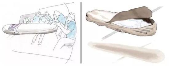 """""""尸体回收""""的设计方案。图源:Promessa"""