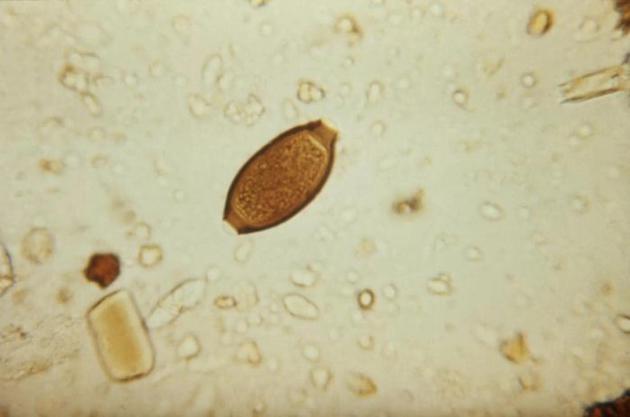 图中是一个人类鞭虫卵,目前德国一家公司希望出售猪肉鞭虫卵作为食物配料。