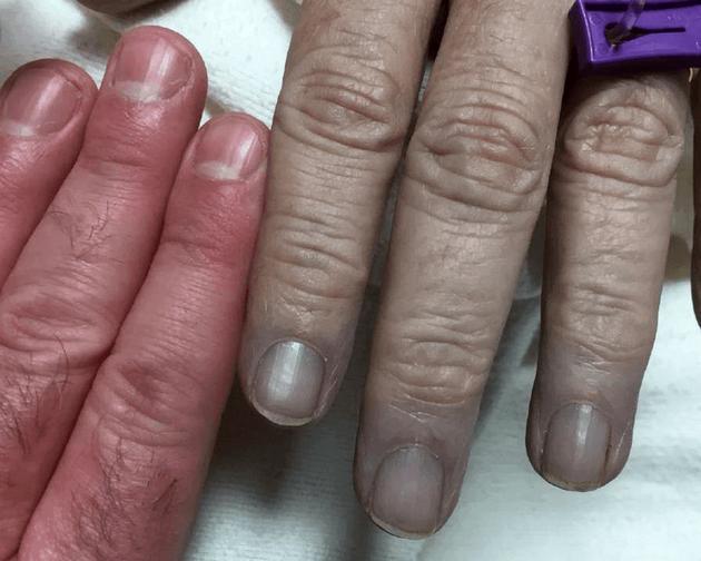 图为一名57岁高铁血红蛋白症患者的手。