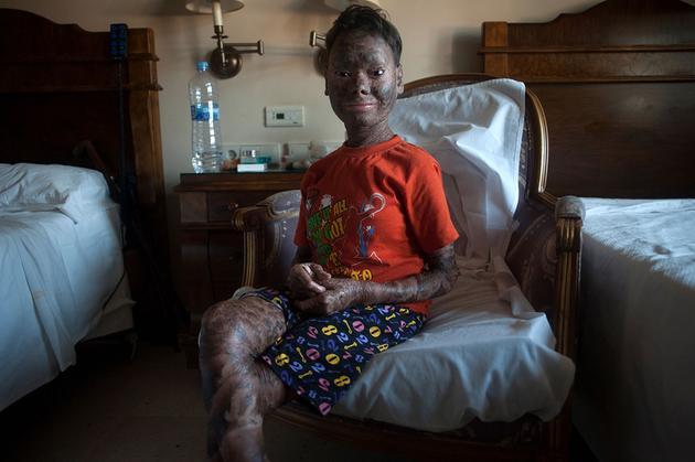 图为少汗性外胚层发育不良症患者梅兰妮・盖多斯(Melanie Gaydos)。由于疾病的影响,她的牙齿、指甲、软骨和骨骼均无法发育。虽然如此,她依旧开创了一番时尚模特事业。