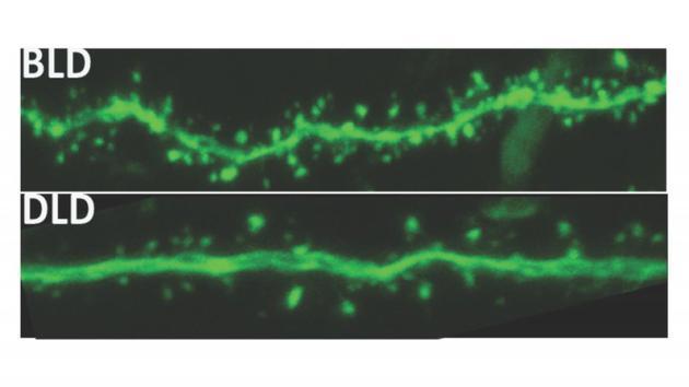 分别暴露于昏暗光线(DLD)和明亮光线(BLD)的尼罗垄鼠,在树突棘(绿色实线旁边的微小突出)数量上出现了显著差异。两组尼罗垄鼠在空间任务的表现上也有很大差别。
